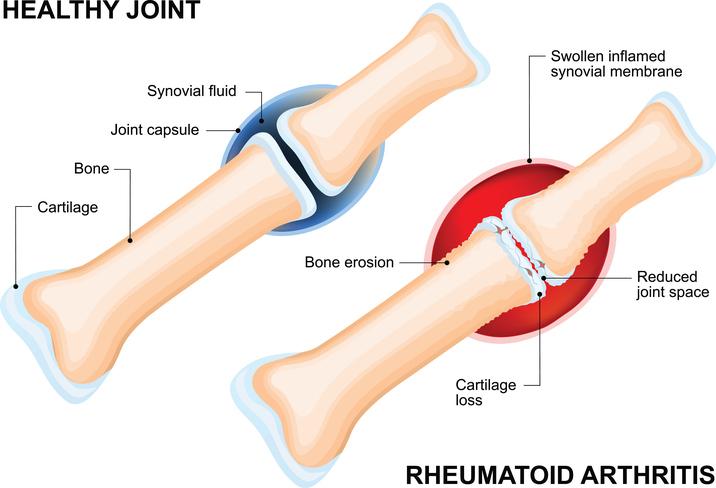 rheumatoid arthritis and cbd oil